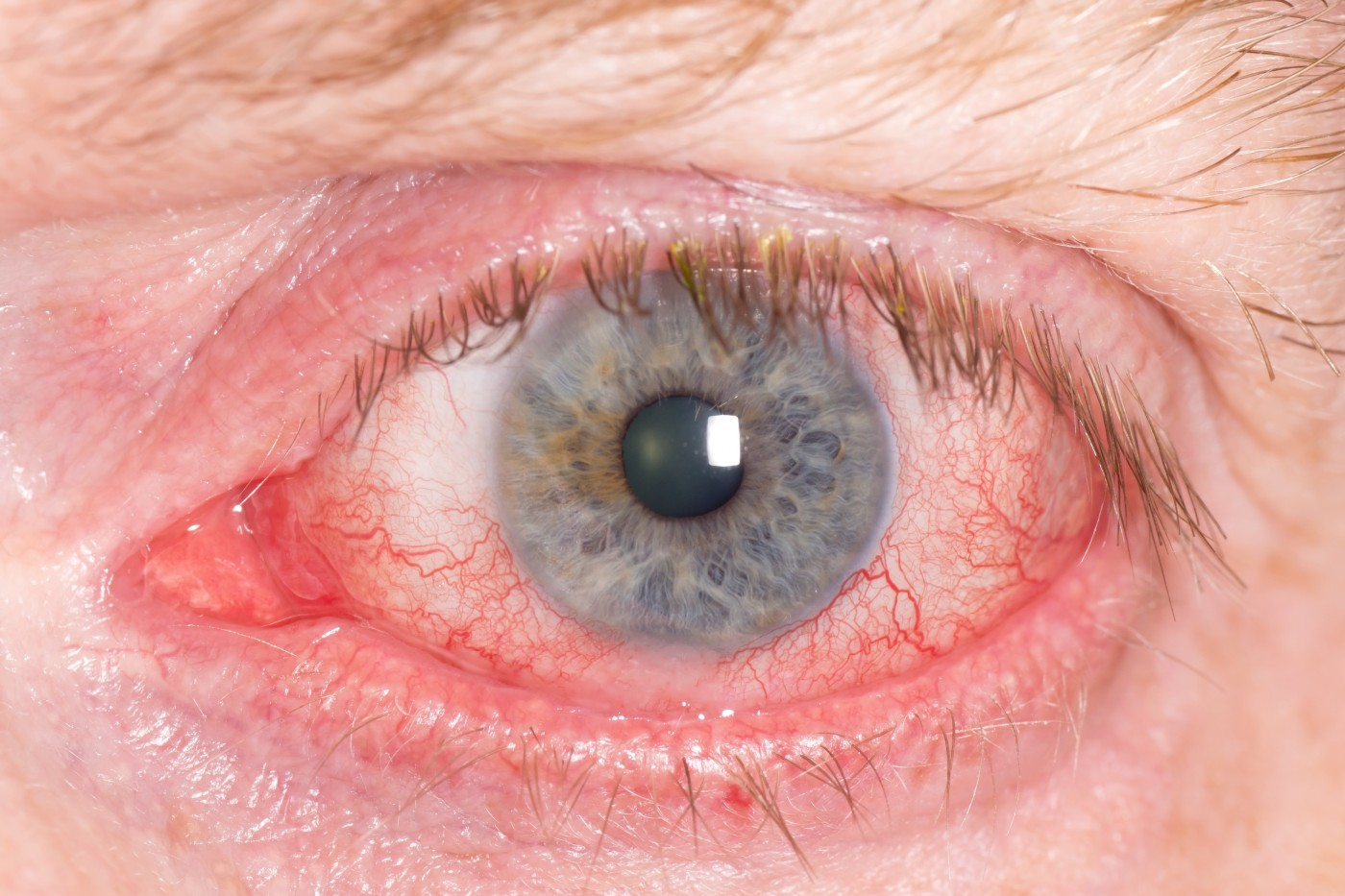NSAIDs Used To Treat Inflammation and Pain After Cataract Surgery
