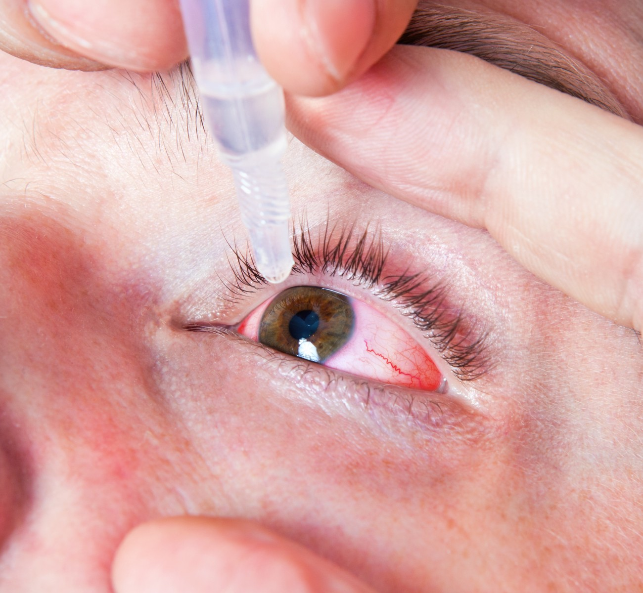 Novel Therapy Reveals Promising Phase 3 Clinical Trial Results For Post-Cataract Surgery